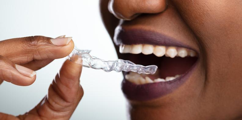 iStock_2019_800_dental_teeth_aligner_3d Print copy.jpg
